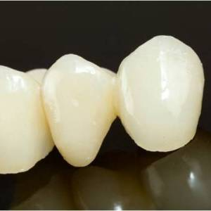 Pune tooth Cap Crown and Bridge Bespoke Dental