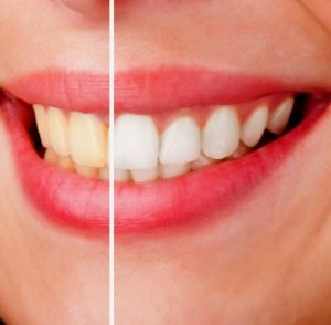 Pune Teeth whitening bleaching Cleaning Stain Removal Bespoke Dental