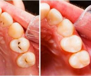 Pune Cavity Filling Tooth coloured at Bespoke Dental